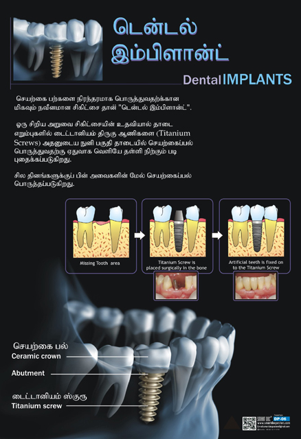 Dental Implants Tamil Dp 06 T Smart Doc Posters