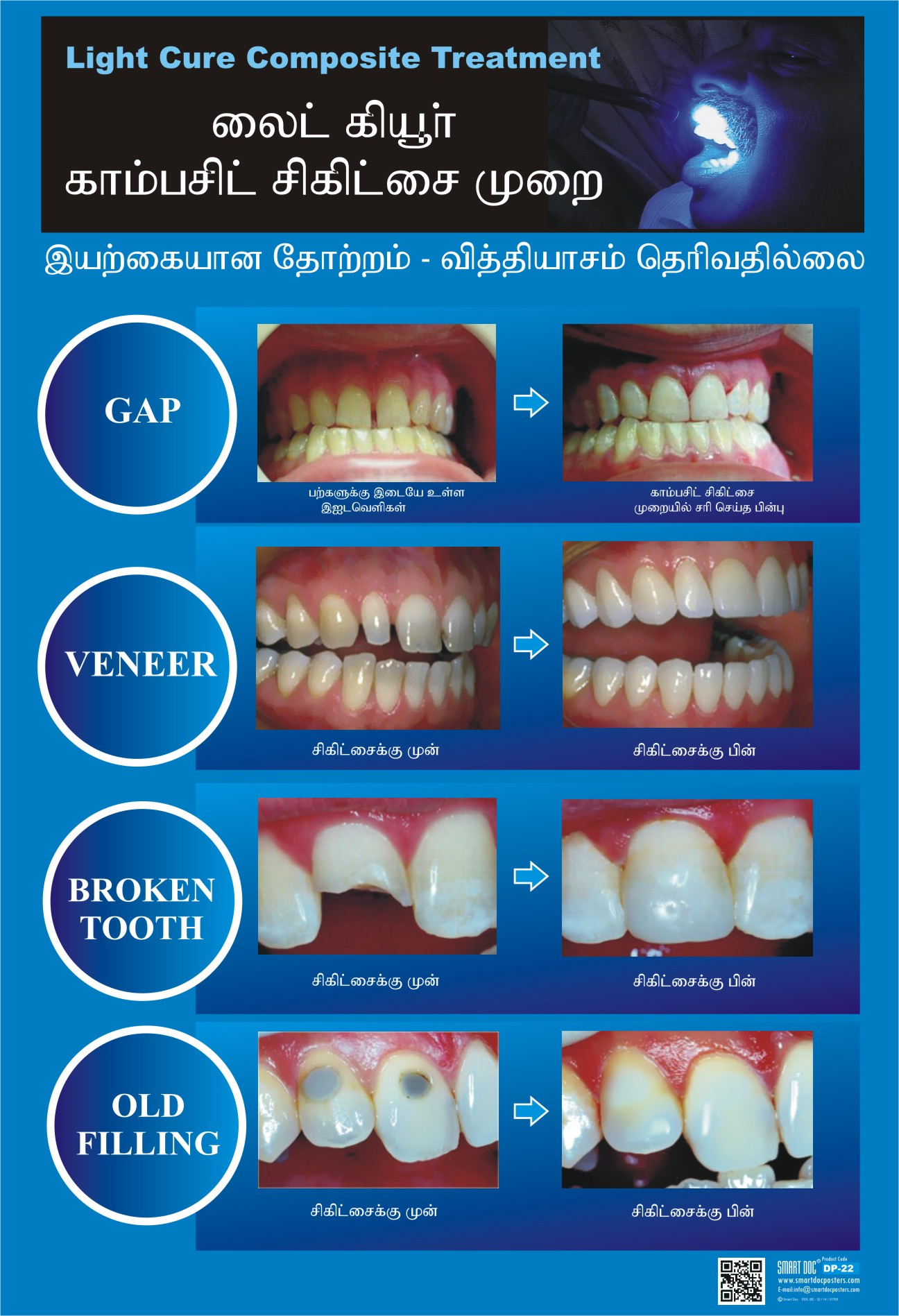 Composite Fillings Tamil Dp 22 T Smart Doc Posters