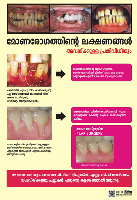 Gum Disease Progression If Left Untreated Malayalam Dp