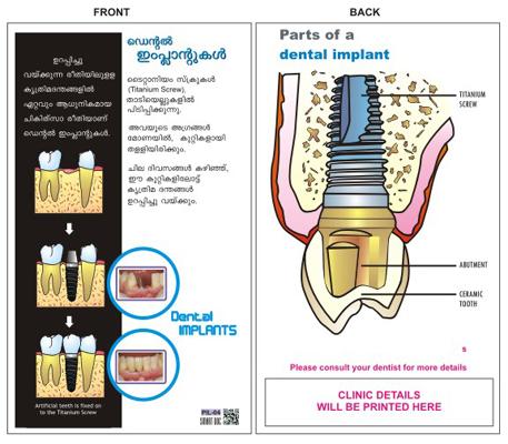 pil-04-implants