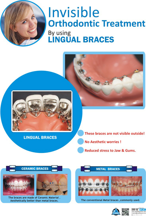 Invisible Orthodontics Or Lingual Orthodontics Eng Dp