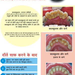 post extraction instructions in hindi