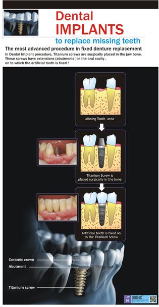 Dental Implants Eng Ldp 02 Smart Doc Posters